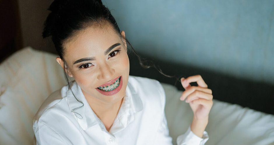 Beneficios de tener los dientes rectos